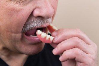 Wypadanie zębów a choroby